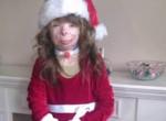Safyre-Terry-christmas-arson-survivor